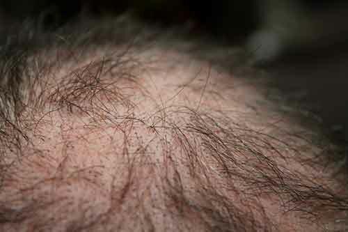 Я потеряла 80 % волос. Как я боролась с облысением
