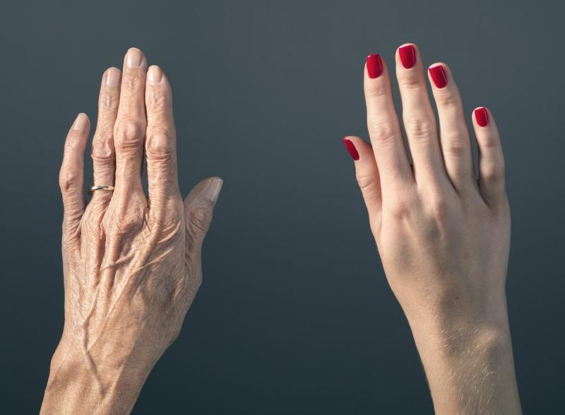Морщины на руках, как убрать?