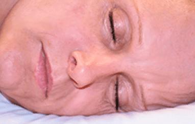 Мы спим, а морщины формируются