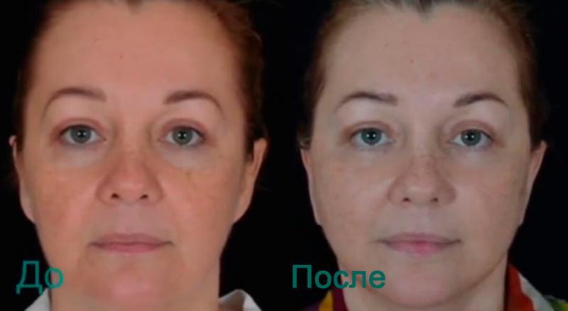 Подтяжка лица в фотографиях До и После