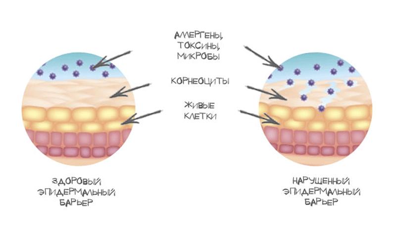 5 причин сухости кожи и появления ранних морщин