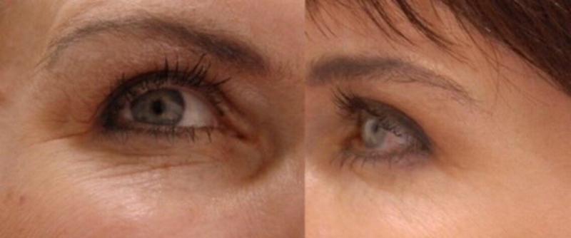 Эффективная омолаживающая маска для кожи вокруг глаз