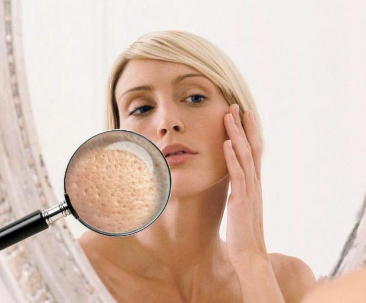 Расширенные поры. Ошибки в макияже, которые их подчеркивают.