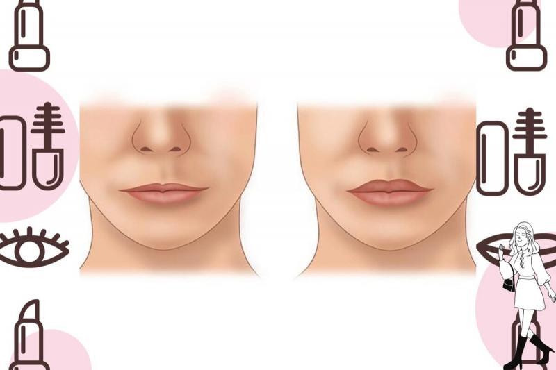 7 лучших способов увеличить губы: выбираю самый безопасный