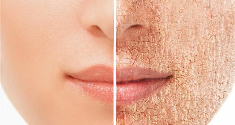 Шелушение кожи, как правильно применять скрабы.