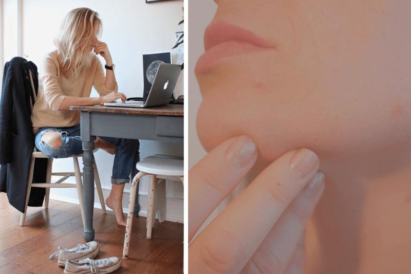 5 вещей, которые делают девушки с идеальной кожей лица