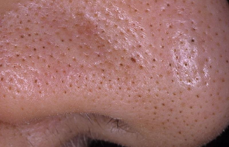 Больше никаких мучительных походов к косметологу! Умный способ избавиться от черных точек.