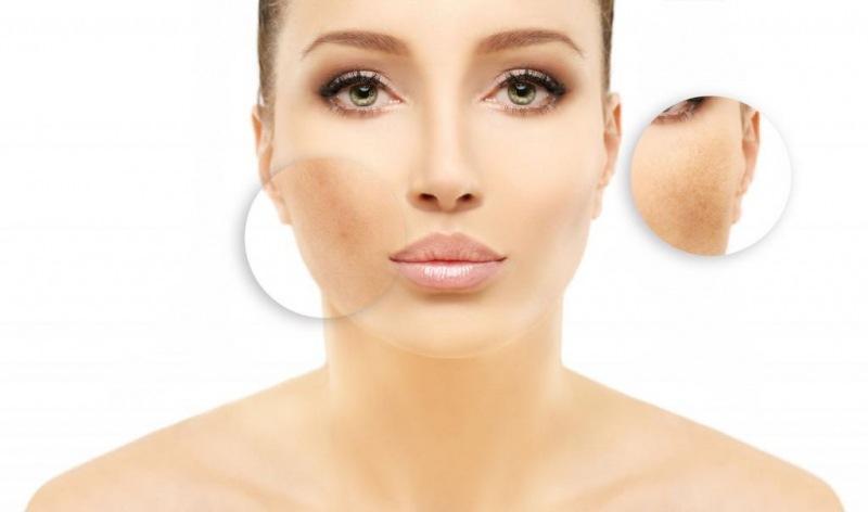 Лазерное удаление пигментных пятен на лице: назначение, особенности прохождения процедуры и отзывы
